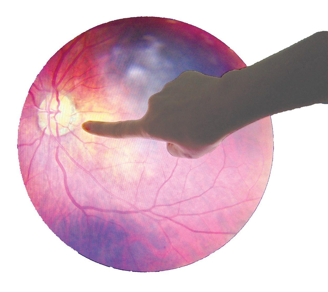 Ochiul diabetic te poate orbi. Ireversibil