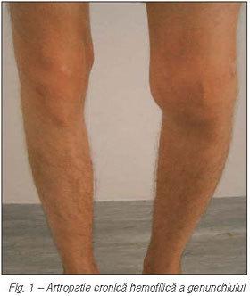 tratamentul hemartritei la genunchi)