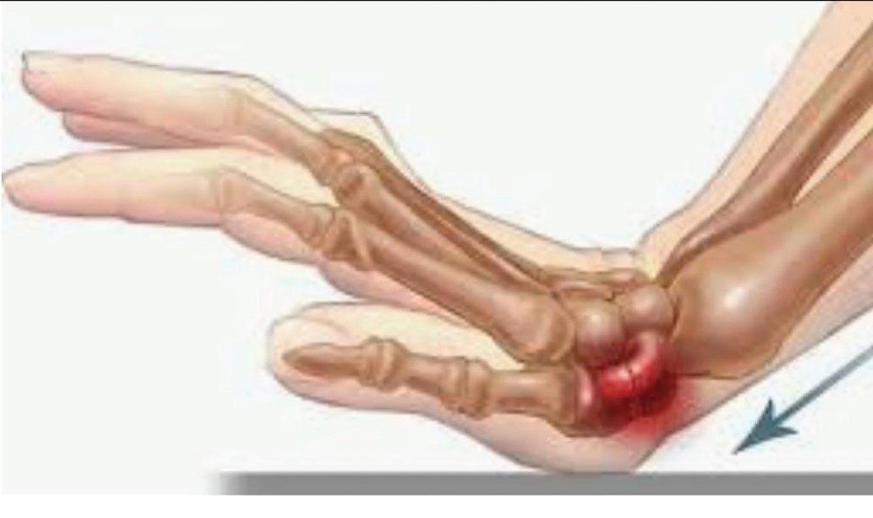 Cura chirurgicala a fracturii de scafoid   CENTROKINETIC